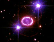 A String of 'Cosmic Pearls' Surrounds an Exploding Star