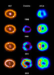 Observations of SN1987A at Different Wavelengths