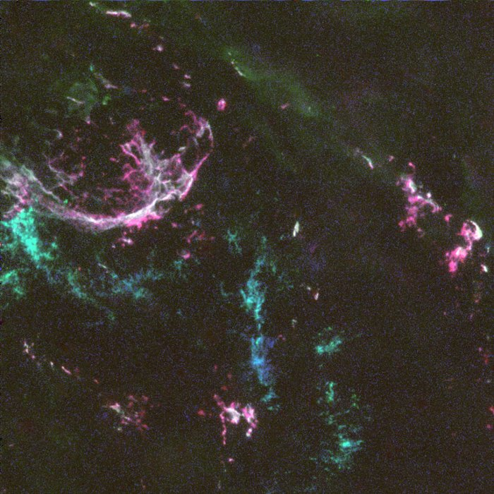 Oxygen-Rich Supernova